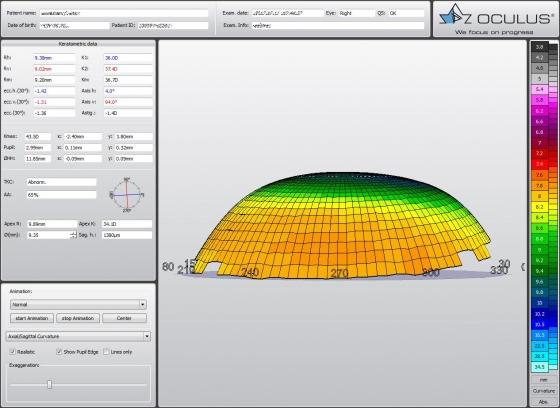 Radzenes 3D attēlojums (sānskats)