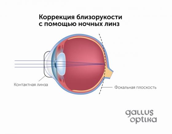 Упражнения для восстановления дальнозоркости глаз