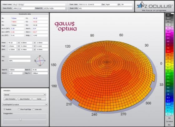 3D изображение топографии роговицы