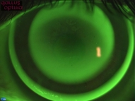 Ночная линза при закрашивании флуоресцином