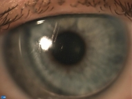 Поцарапанная контактная линза