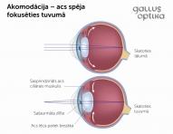 Akomodācija - acs spēja redzēd gan tālus, gan tuvus objektus