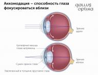 Аккомодация - способность глаза видеть как дальние так и близкие объекты