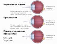 Коррекция пресбиопии
