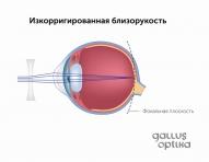 Коррекция близорукости с помощью очков