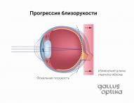 Вытягивание глазного яблока и прогрессия близорукости