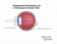 Коррекция близорукости с помощью ночных линз