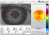 Параметры топографии правого глаза