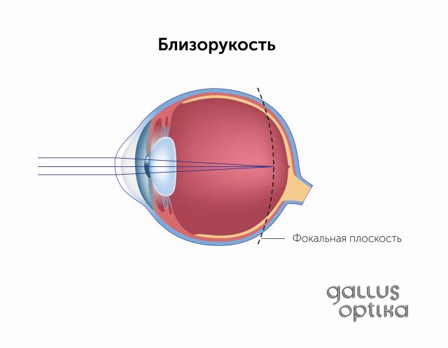 Лечебная гимнастика восстановление зрения