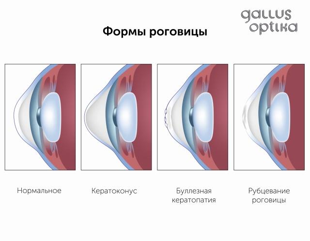 Как улучшить зрение в возрасте 50 лет